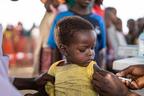 100 vaccini contro il morbillo